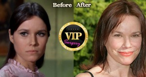 Barbara Hershey before and after Plastic Surgery