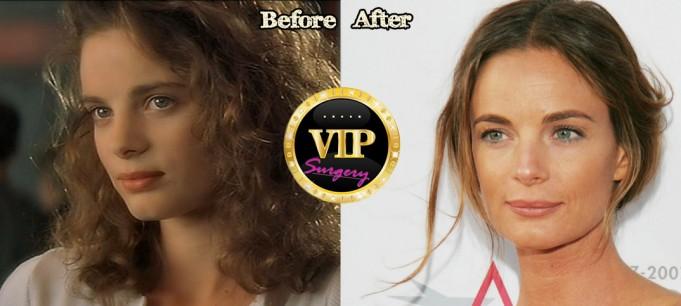 Gabrielle Anwar Plastic Surgery