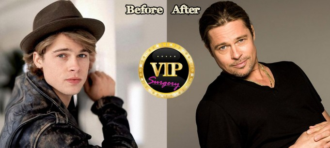 brad pitt before and after plastic surgery