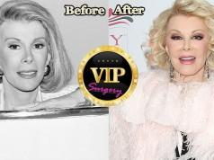 joan rivers plastic surgery