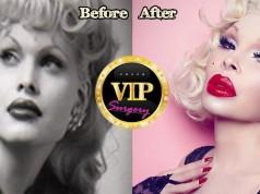 Amanda Lepore Plastic Surgery