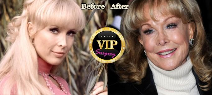 Barbara eden plastic surgery