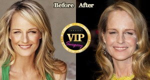 Helen Hunt plastic surgery
