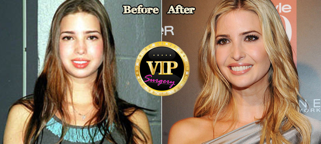 Ivanka Trump Plastic Surgery Before and After Full HD
