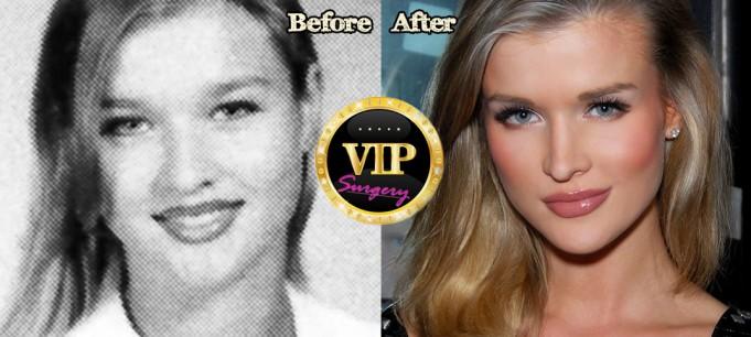 Joanna Krupa plastic surgery