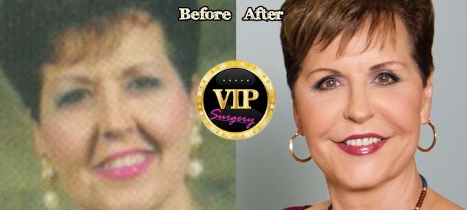 Joyce Meyers plastic surgery