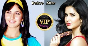 Katrina Kaif plastic surgery
