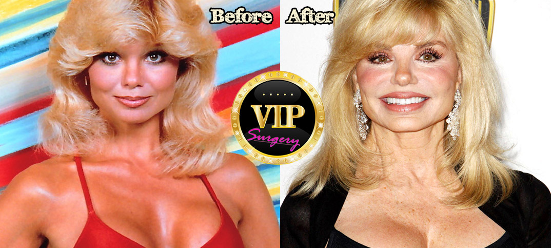 The Hair Hall of Fame: Happy Birthday, Loni Anderson
