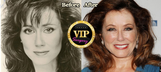 Mary Mcdonnell plastic surgery