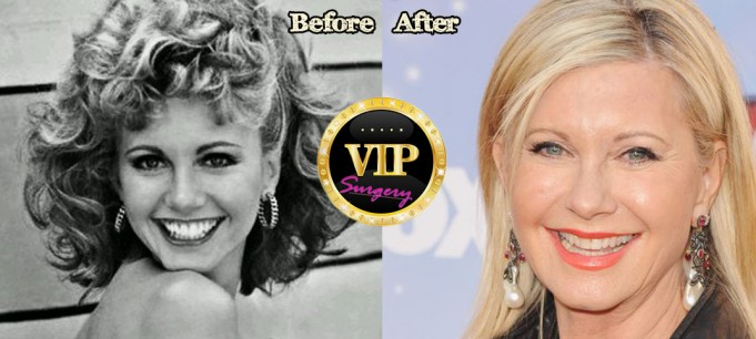 Olivia Newton-John plastic surgery