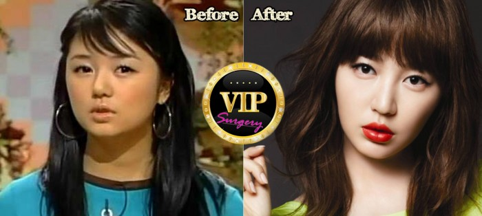 yoon eun hye before and after photos yoon eun hyeYoon Eun Hye Before After