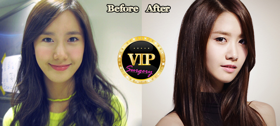 yoona before and after photos yoona tunes yoona snsd yoona is snsd the    Yoona Plastic Surgery Nose