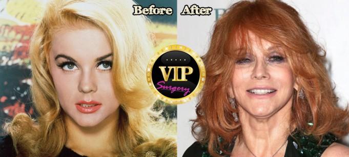 ann-margret plastic surgery