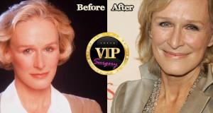 glenn close plastic surgery