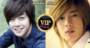 kim hyun joong plastic surgery