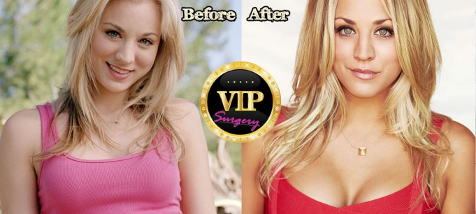 Kaley Cuoco plastic surgery