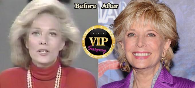 Lesley Stahl plastic surgery