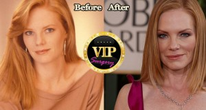 Marg Helgenberger before and after Plastic Surgery