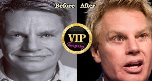 Mike Jeffries plastic surgery