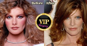 Rene Russo Plastic Surgery
