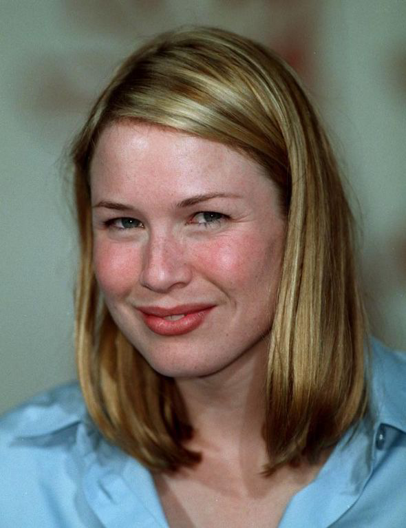 Renee Zellweger young | Surgery VIP Renee Zellweger