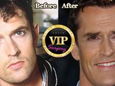 Rupert Everett plastic surgery