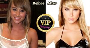 Sara Jean Underwood Plastic Surgery
