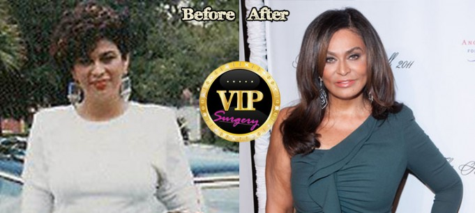Tina Knowles Plastic Surgery