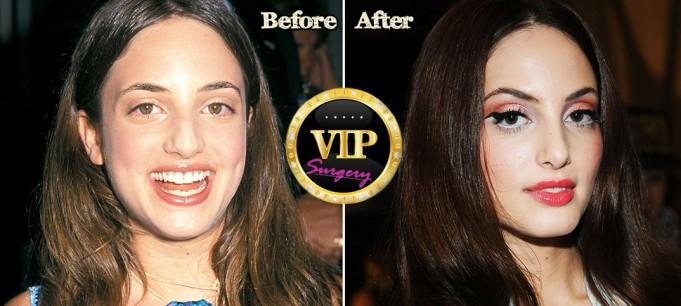 alexa ray joel plastic surgery