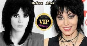 joan jett plstic surgery