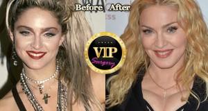 madonna plastic surgery
