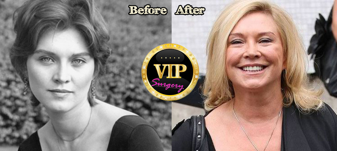 Amanda Redman Plastic Surgery Before And After Photos