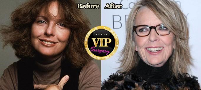 Diane Keaton Plastic Surgery