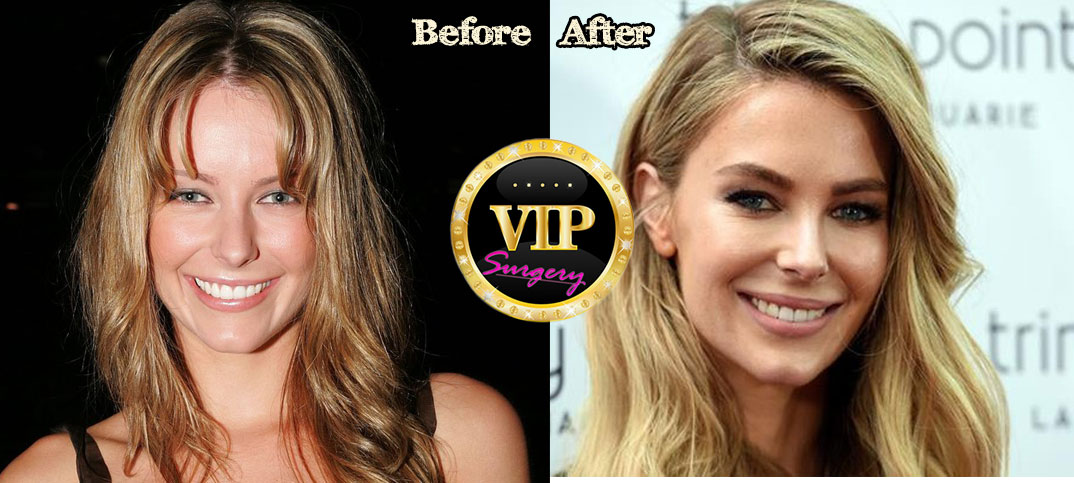 Jennifer Hawkins Before And After