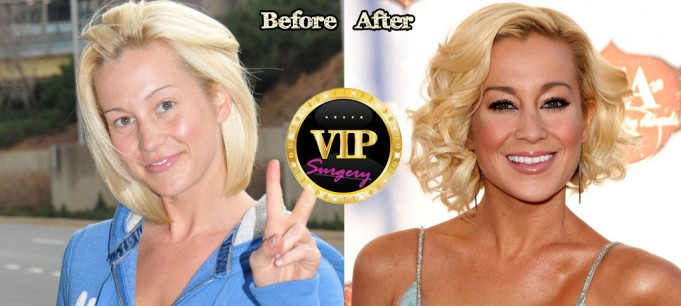 kellie pickler plastic surgery