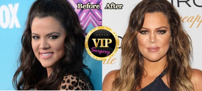 khloe kardashian plastic surgery