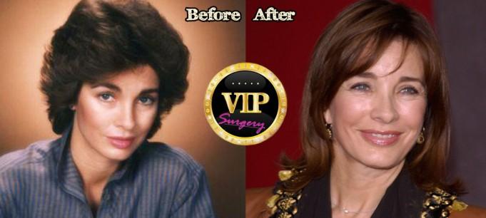 Anne Archer Plastic Surgery