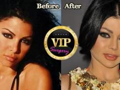 Haifa Wehbe Plastic Surgery