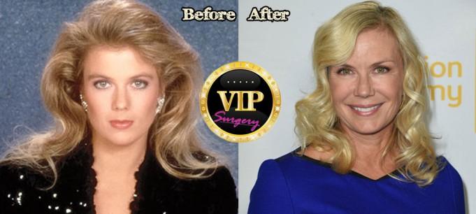 Katherine Kelly Lang Plastic Surgery