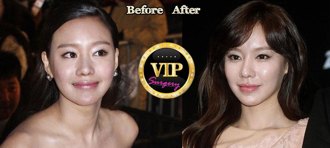 Kim ah Joong Plastic Kim Ah-joong Plastic Surgery
