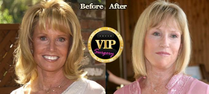 Leslie Charleson Plastic Surgery