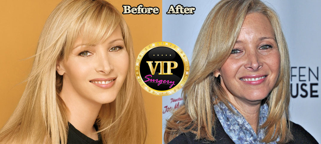 Lisa Kudrow Plastic Surgery Before and After Pictures