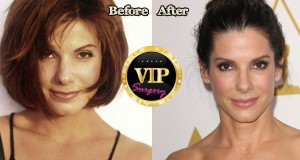 Sandra Bullock Plastic Surgery