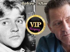 Scott Thorson Plastic Surgery