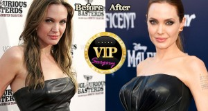 Angelina Jolie Breast Implants