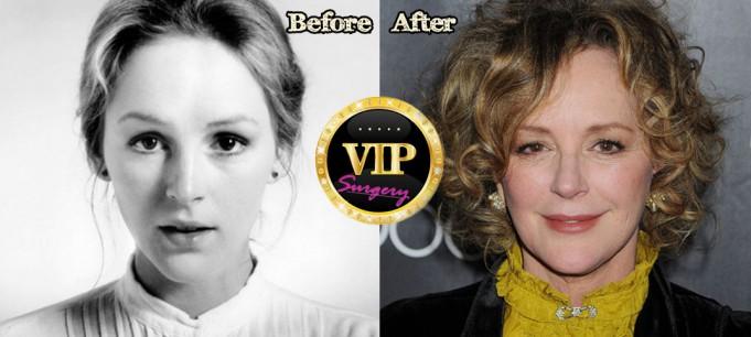 Bonnie Bedelia Facelift
