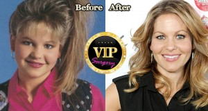 Candace Cameron Plastic Surgery