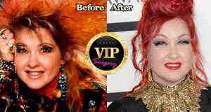Cyndi Lauper Plastic Surgery