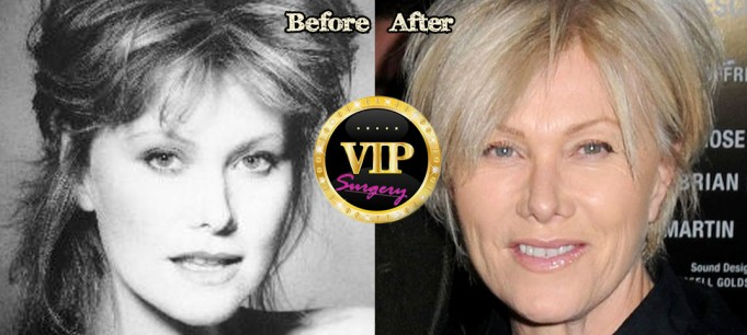 Deborra-lee Furness Plastic Surgery
