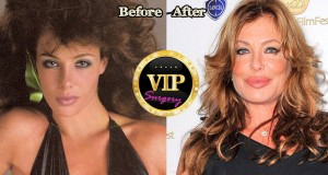 Kelly Lebrock Plastic Surgery